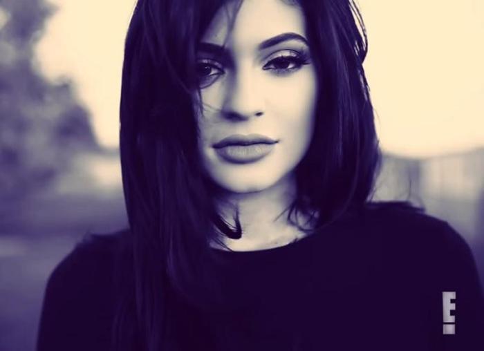 Los labios de Kylie Jenner crean tendencia entre las operaciones de estética