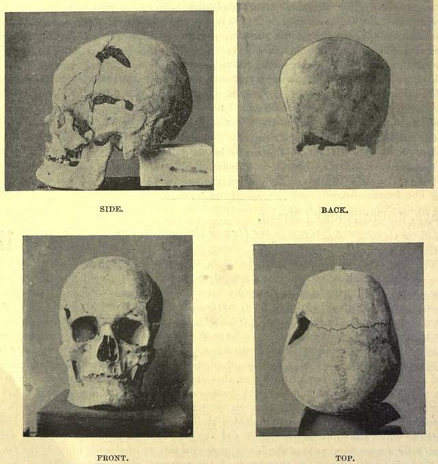 El posible cráneo del faráón «gigante». Crédito: Crédito: Instituto Antropológico Real de la Gran Bretaña e Irlanda.