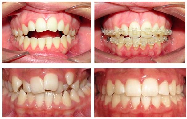 Las reclamaciones contra los dentistas aumentan en España